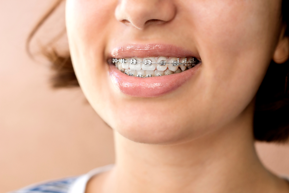 Comparing Invisalign with Metal Braces