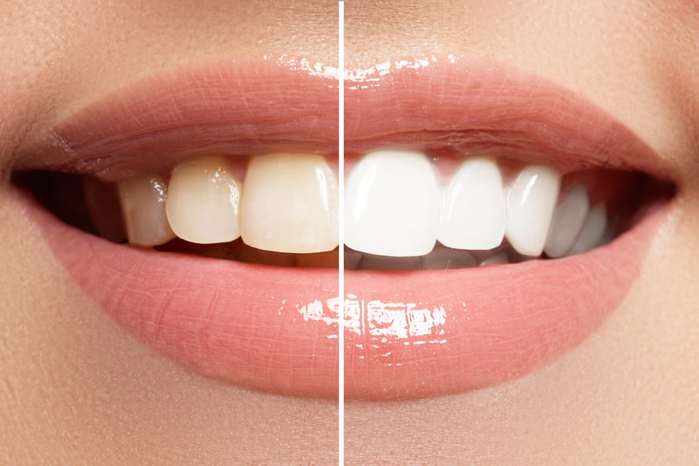 We Answer Your Questions about Teeth Whitening