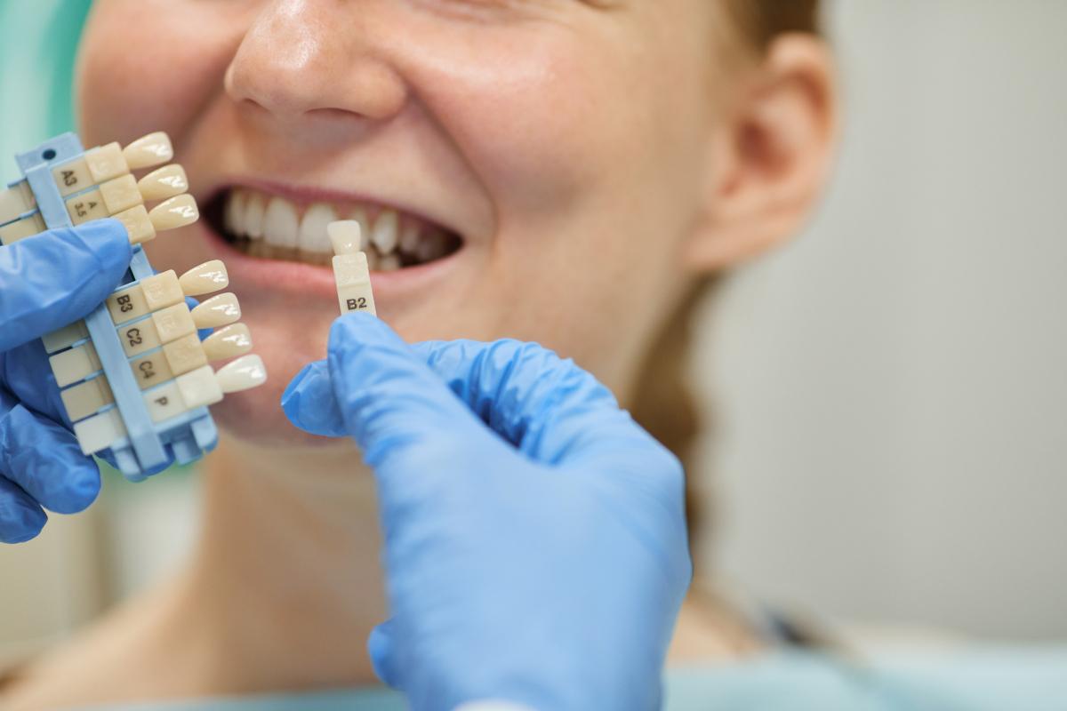 Dental Implants vs. Veneers